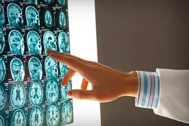 Personal Injury - MRI